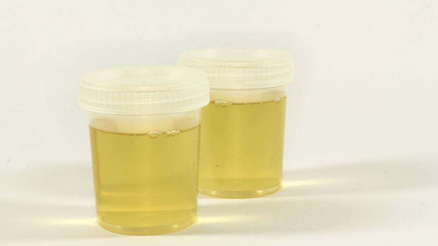 6 Warna Urine ini Bisa Tunjukan Penyakit di Tubuhmu